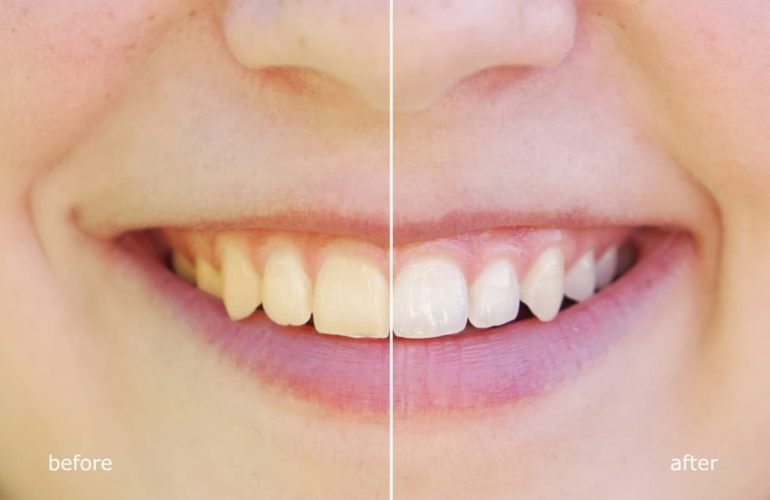 teeth-whitening-tips