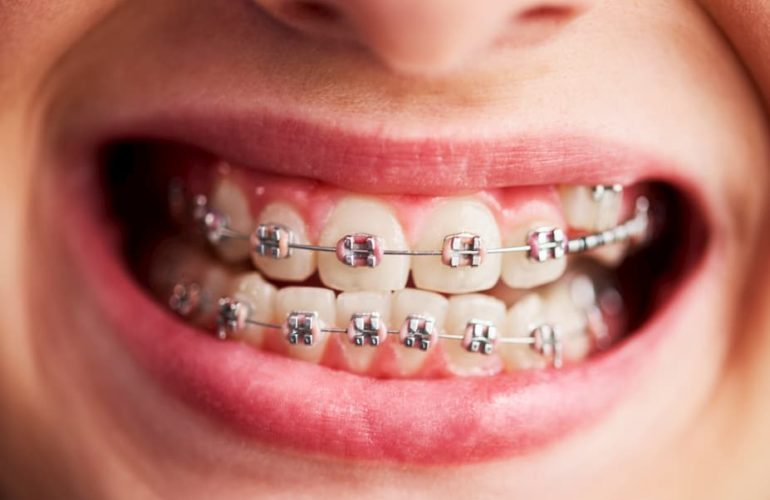 benefits-of-braces